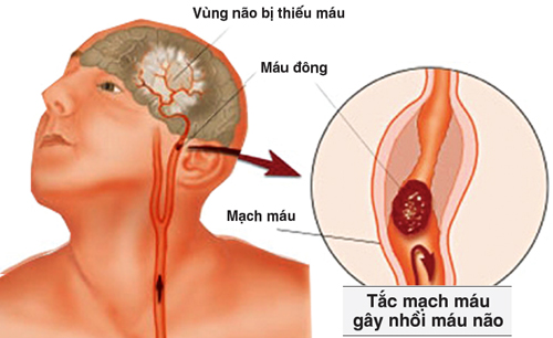 benh-roi-loan-tuan-hoan-nao-co-nguy-hiem-khong-2