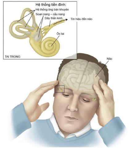 Bệnh rối loạn tiền đình