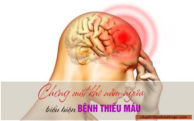 Chóng mặt khi nằm ngửa do bị thiếu máu não